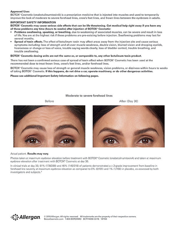Botox Forehead Lines before and after image