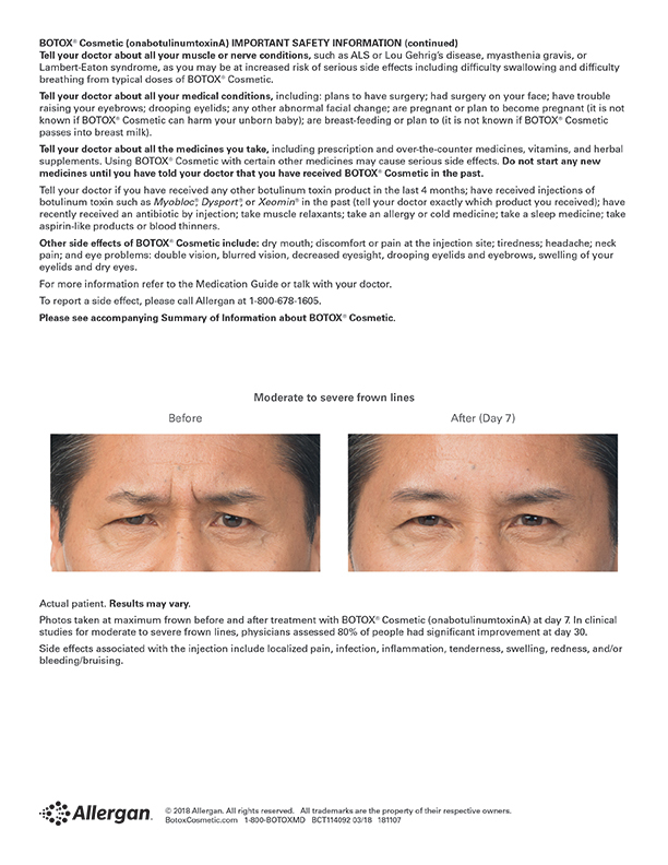 Botox Frown Lines before and after image