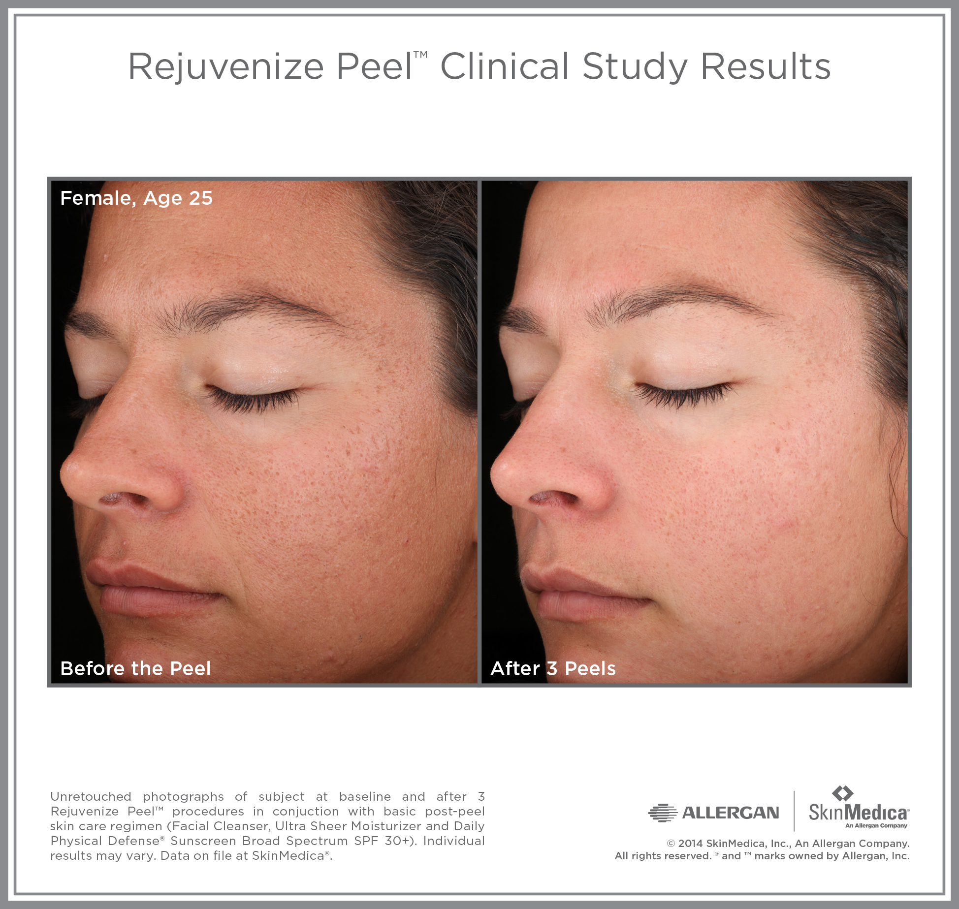 Rejuvenize Peel before and after