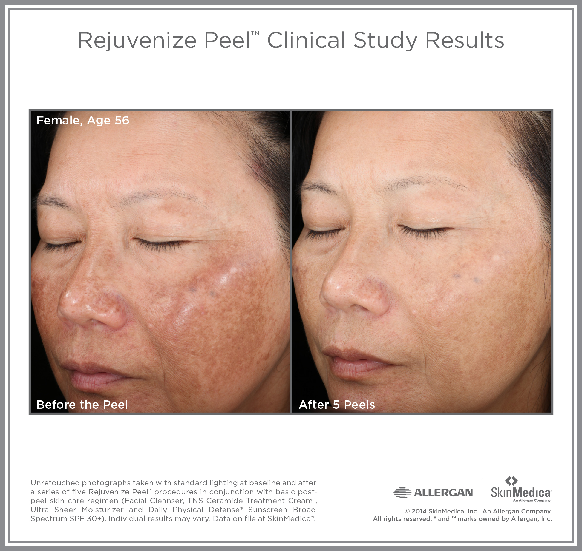 Rejuvenize Peel before and after, clearer skin