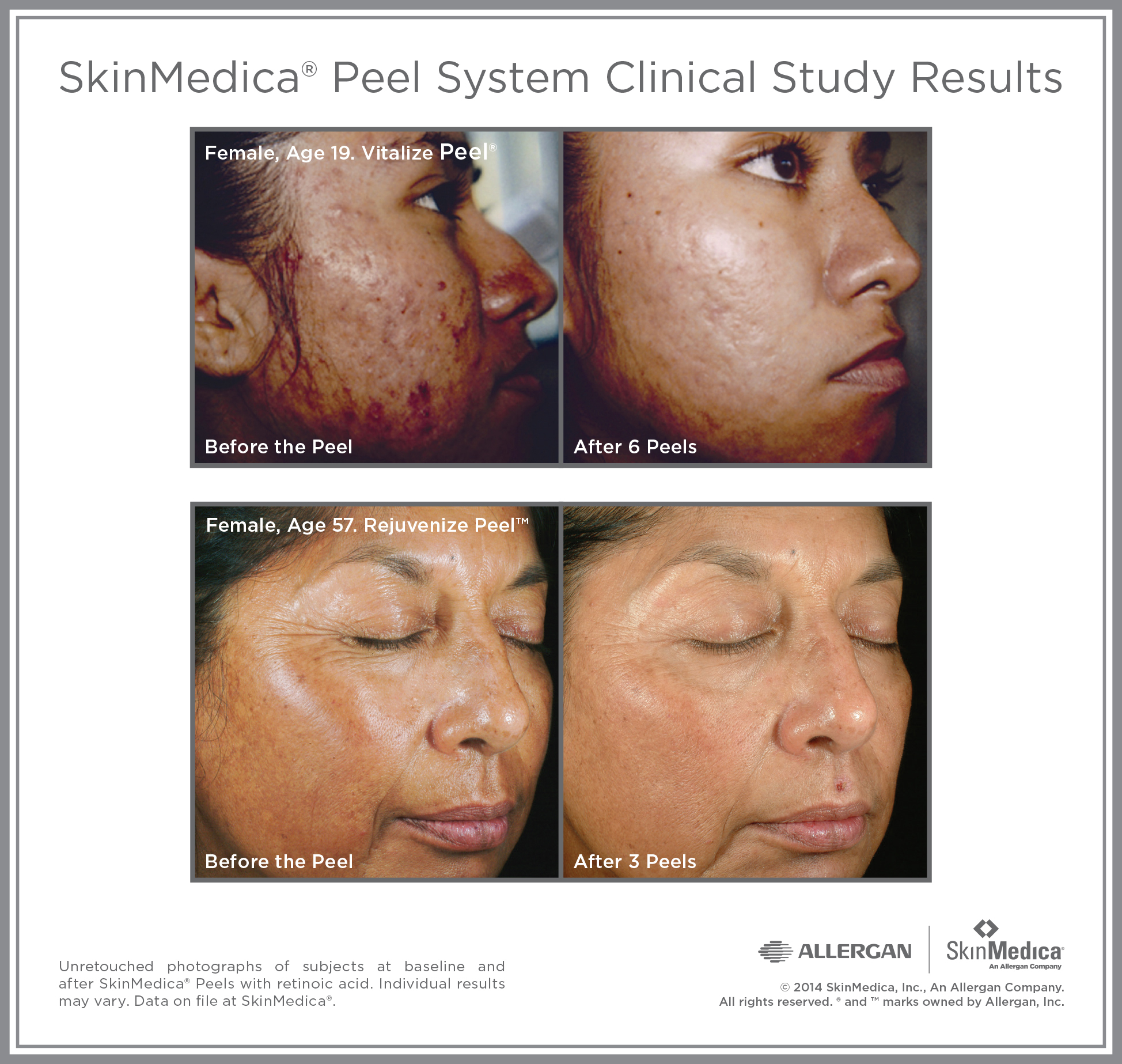SkinMedica Peel before and after, clearer skin