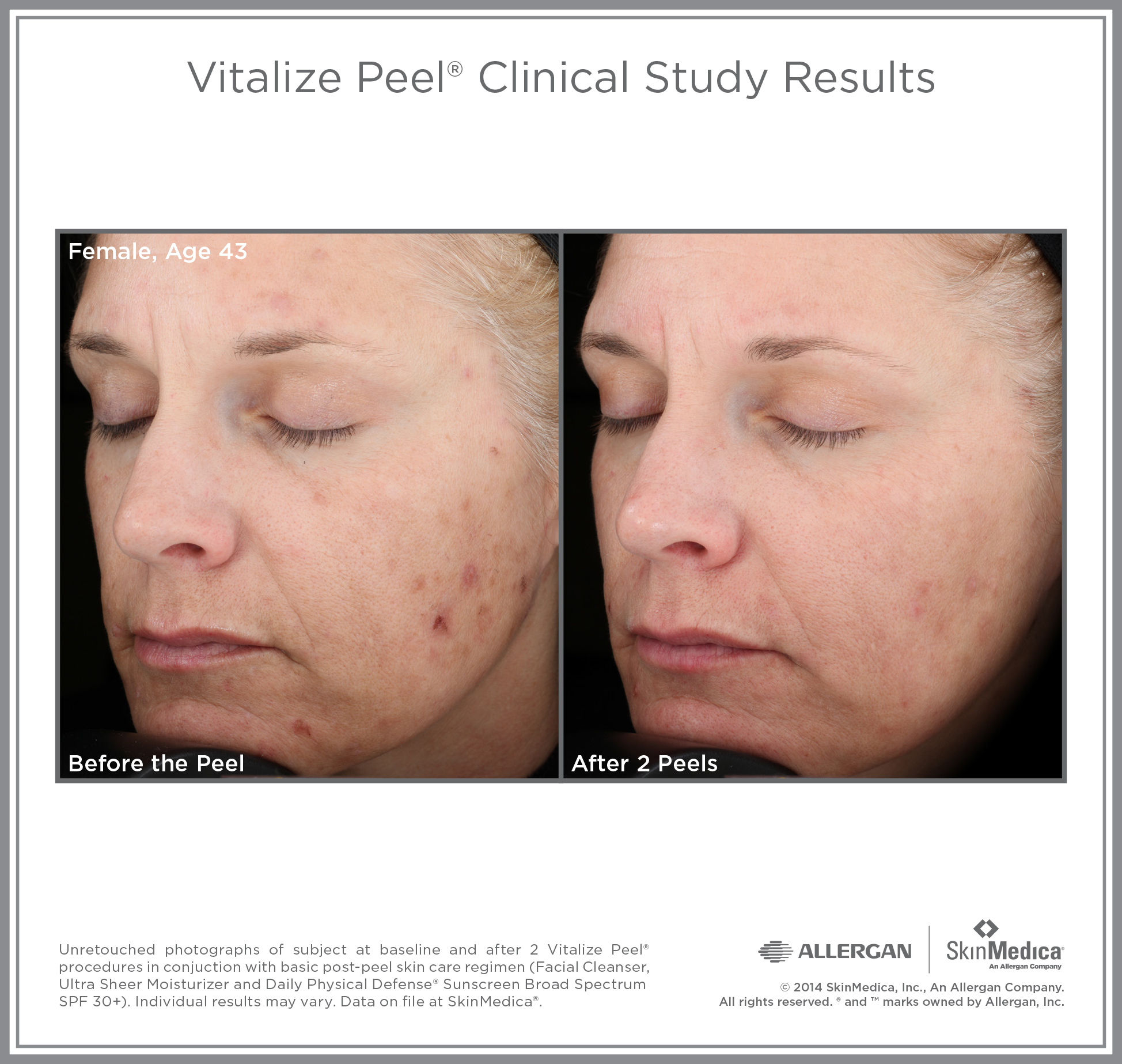 Vitalize Peel before and after