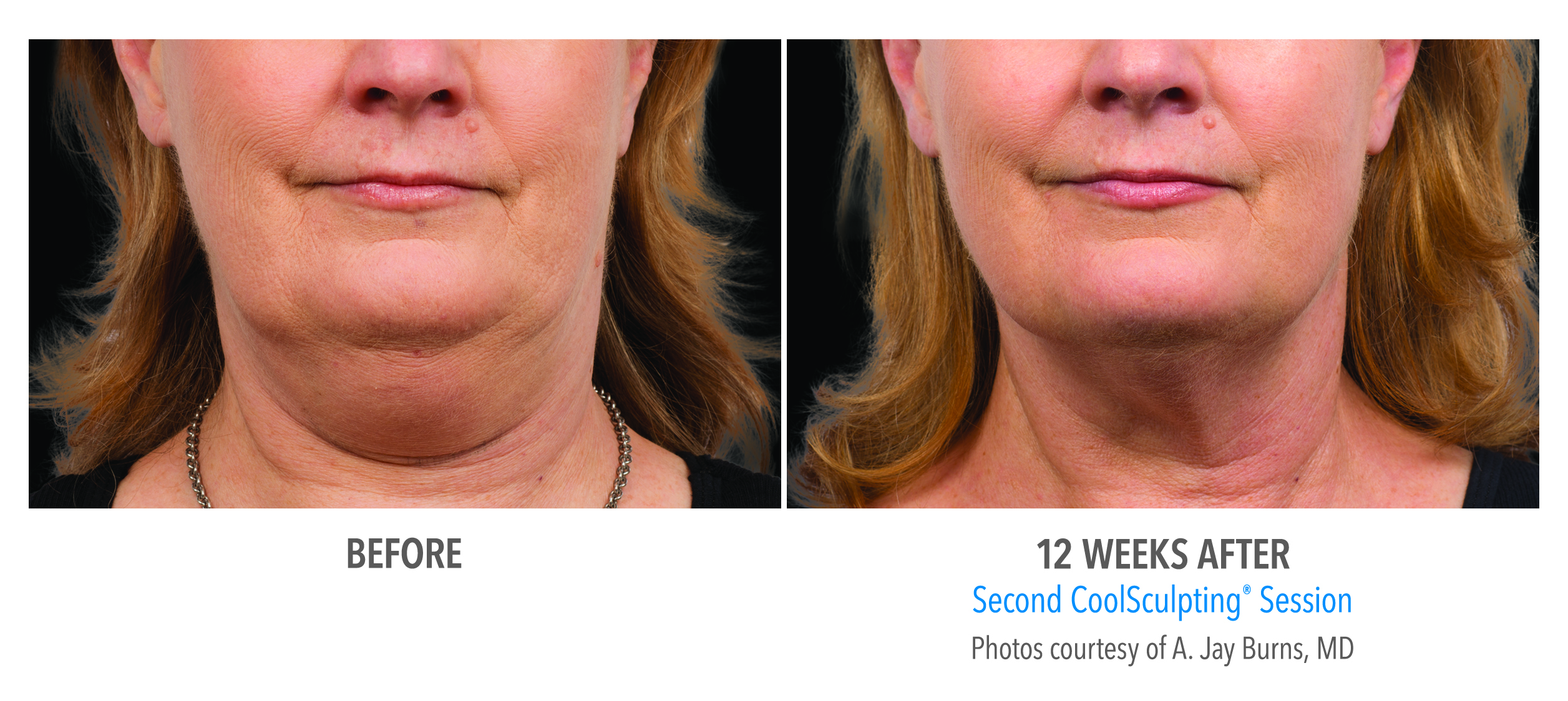 CoolSculpting double chin reduction before and after image