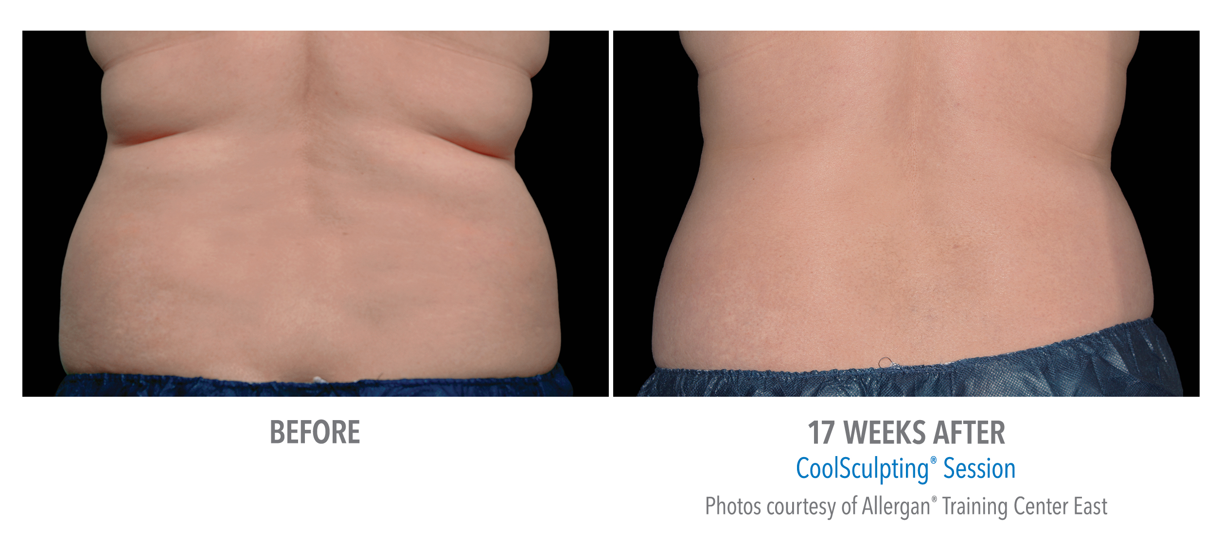 CoolSculpting back and flank fat reduction before and after image
