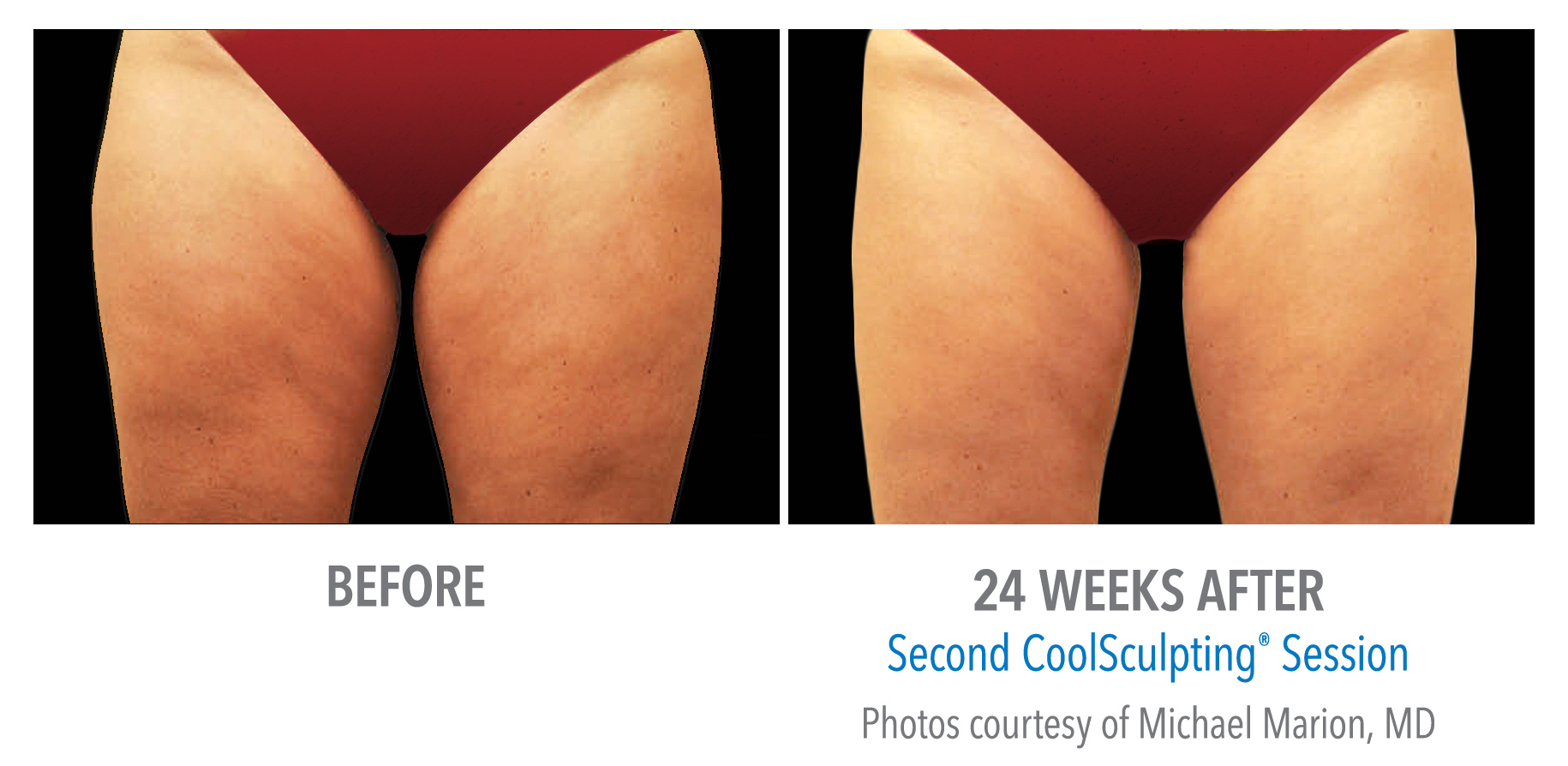 CoolSculpting inner thigh fat reduction before and after image