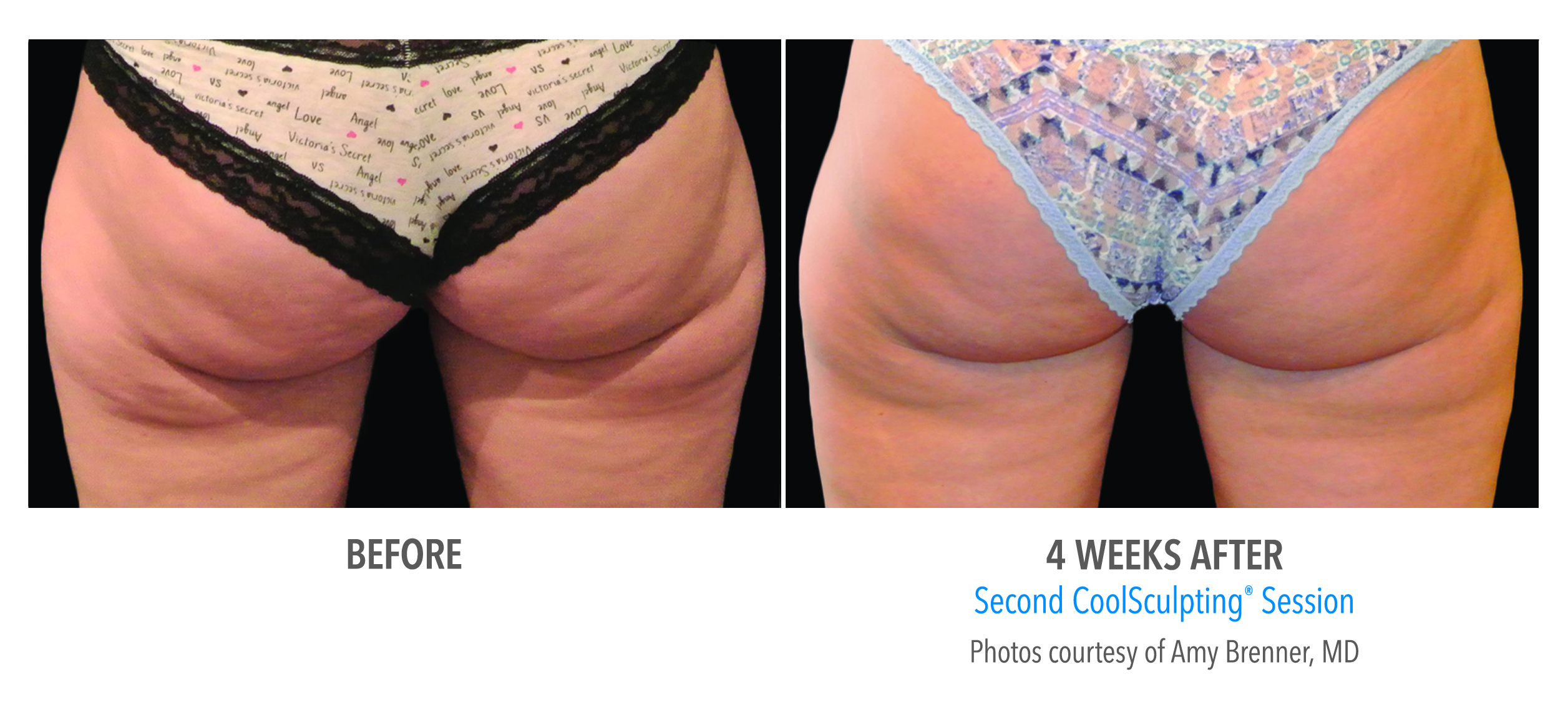 CoolSculpting buttocks fat reduction before and after image