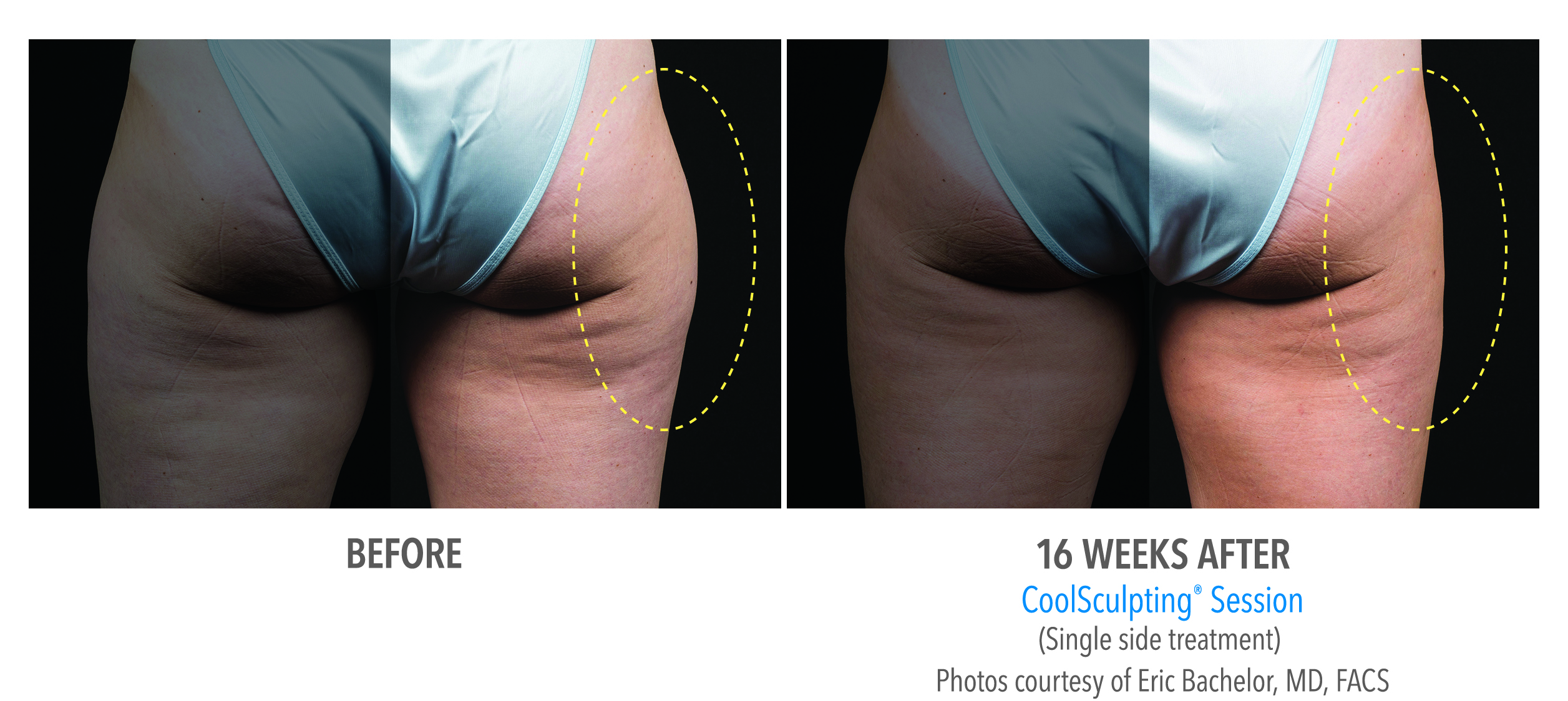 CoolSculpting outer thigh fat reduction before and after image