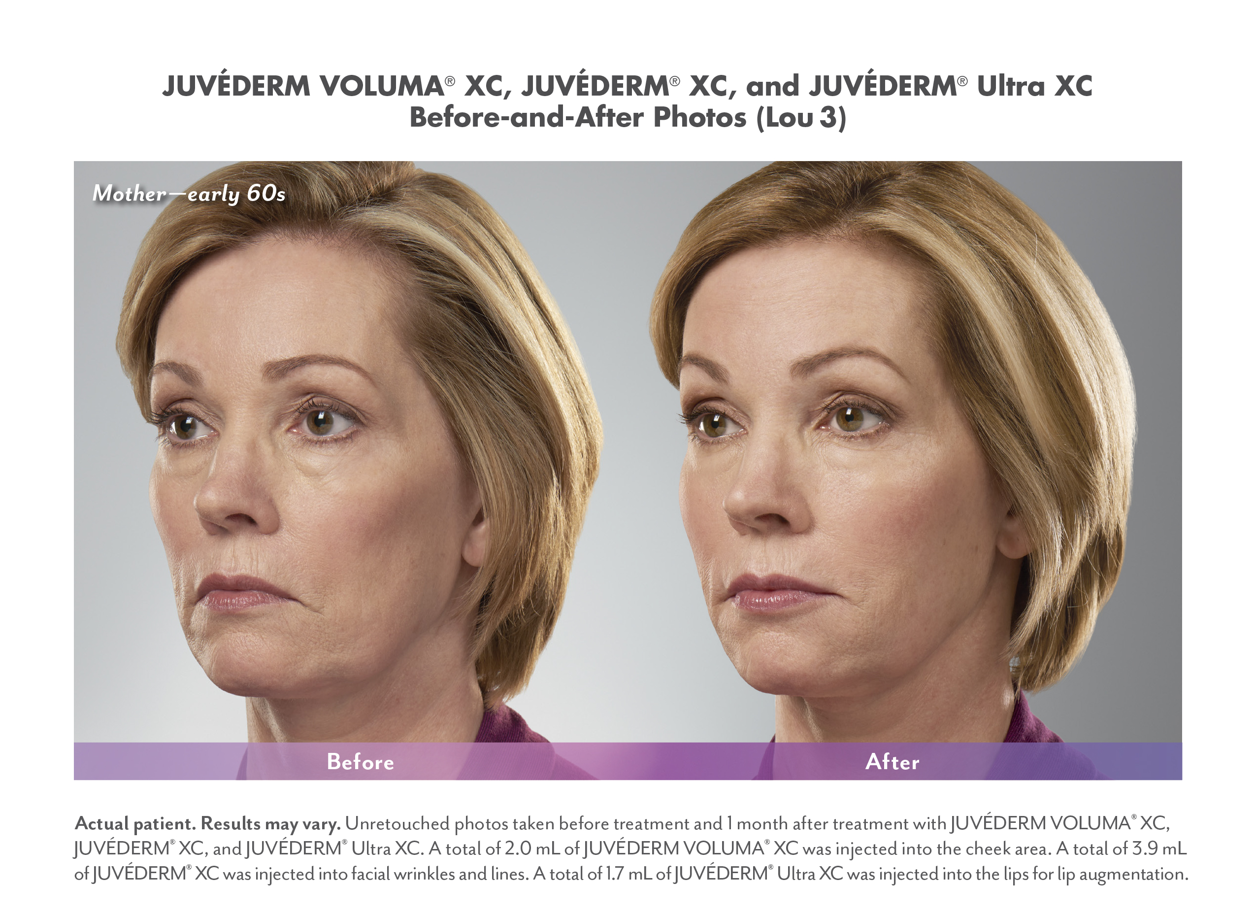 Juvederm before and after image, reduce sagging