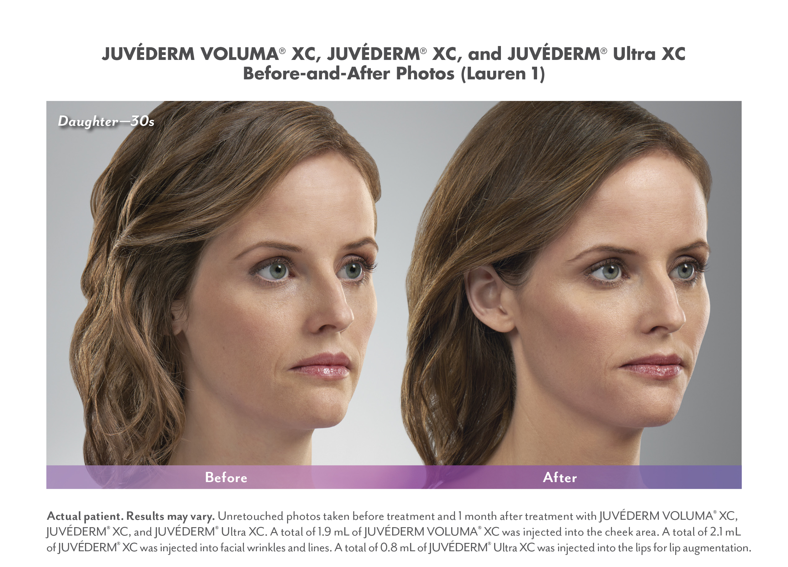 Juvederm before and after image, reduce lip lines