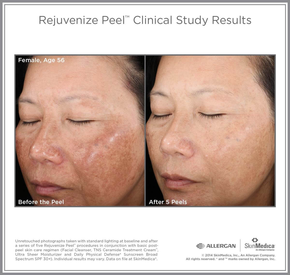 chemical peels before and after image
