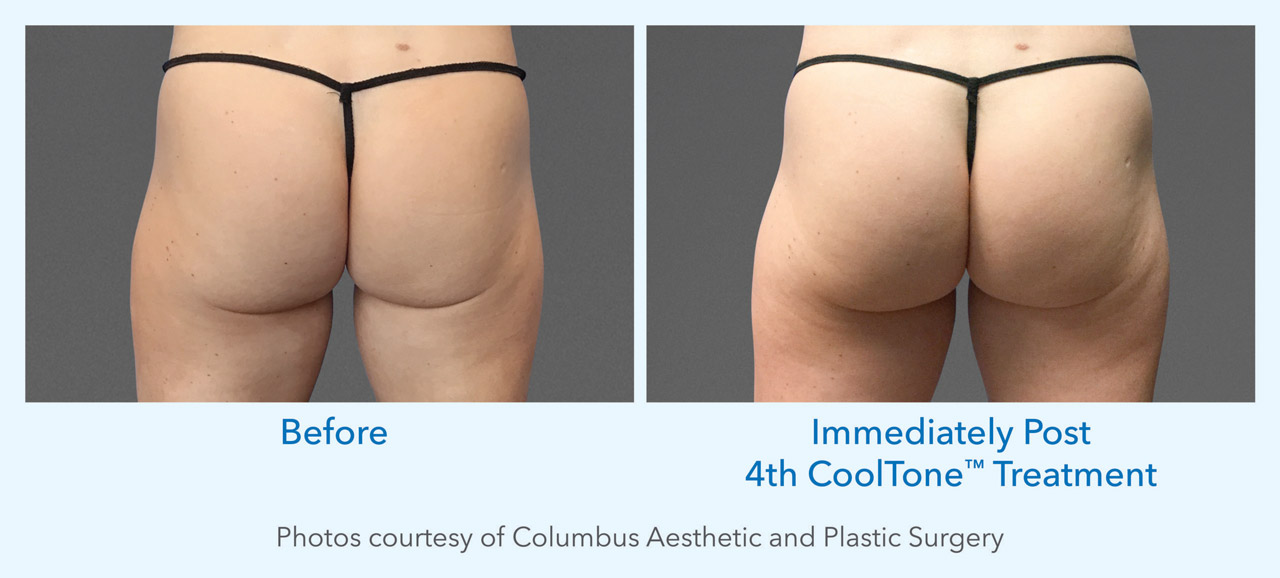 CoolTone Muscle Toning before and after image