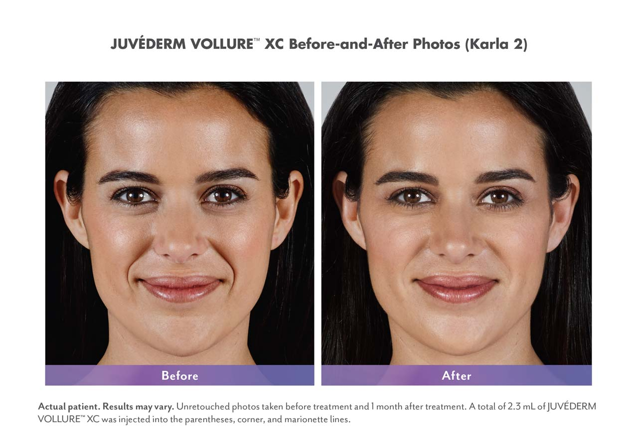 dermal fillers before and after image